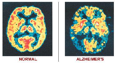 Study: Fatty fish oil prevents Alzheimer's, memory loss