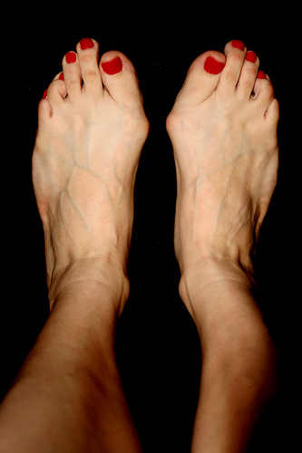 Have Ugly Feet Fix Them With Surgery Some Women Say Wtop