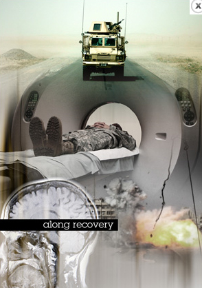 Soldier's film focuses on traumatic brain injury