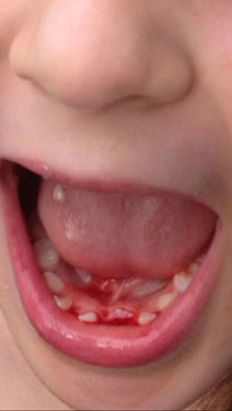It's the tooth: Tooth fairy can be pricey