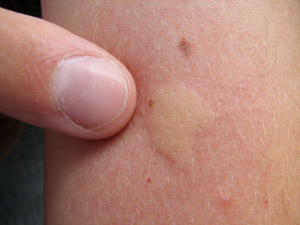 True love: Why mosquitoes bite