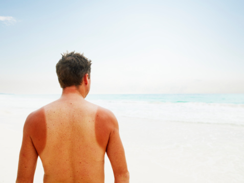 Video explains what actually causes sunburn