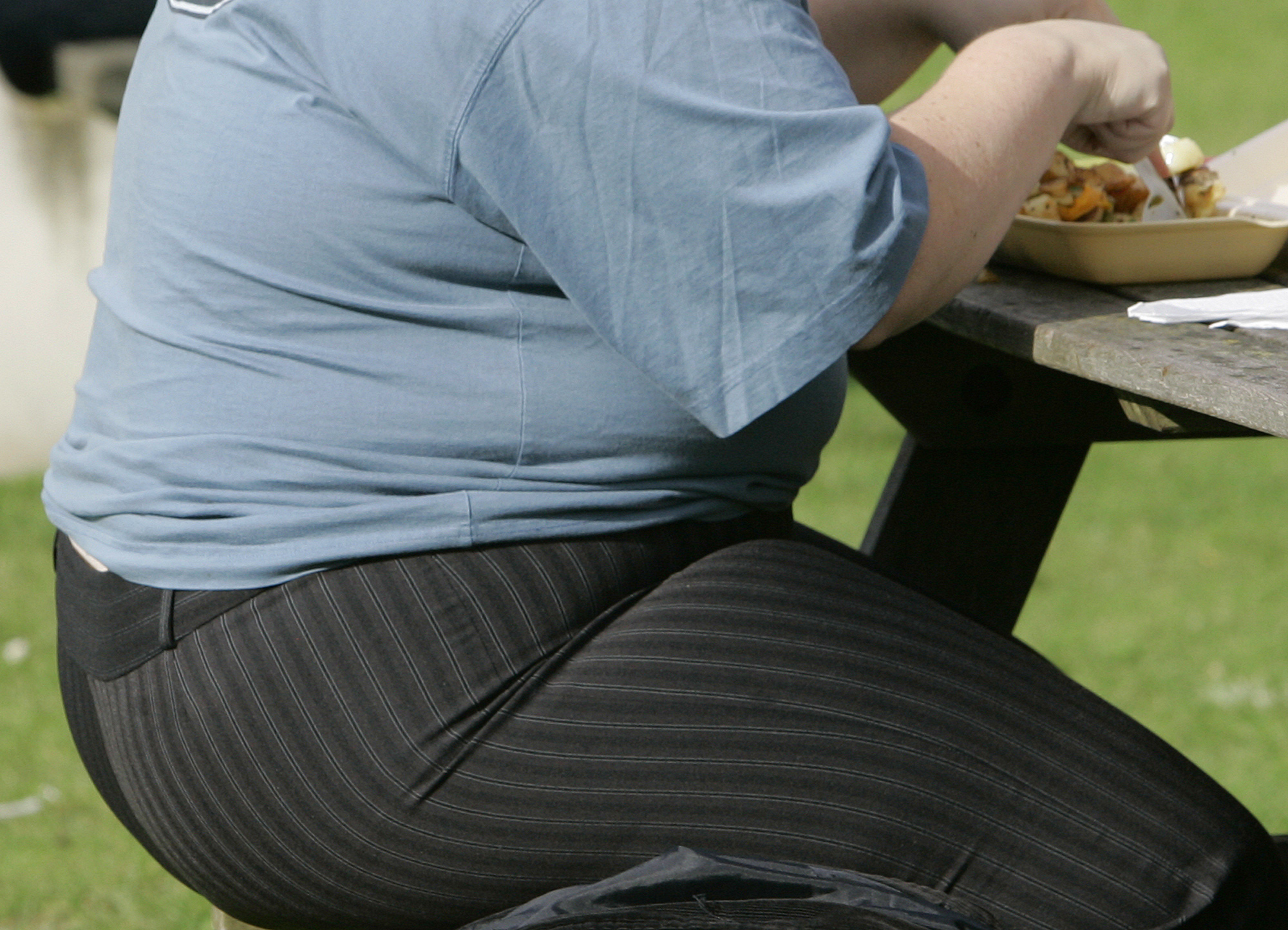 Report says obesity is taking toll on nation's health