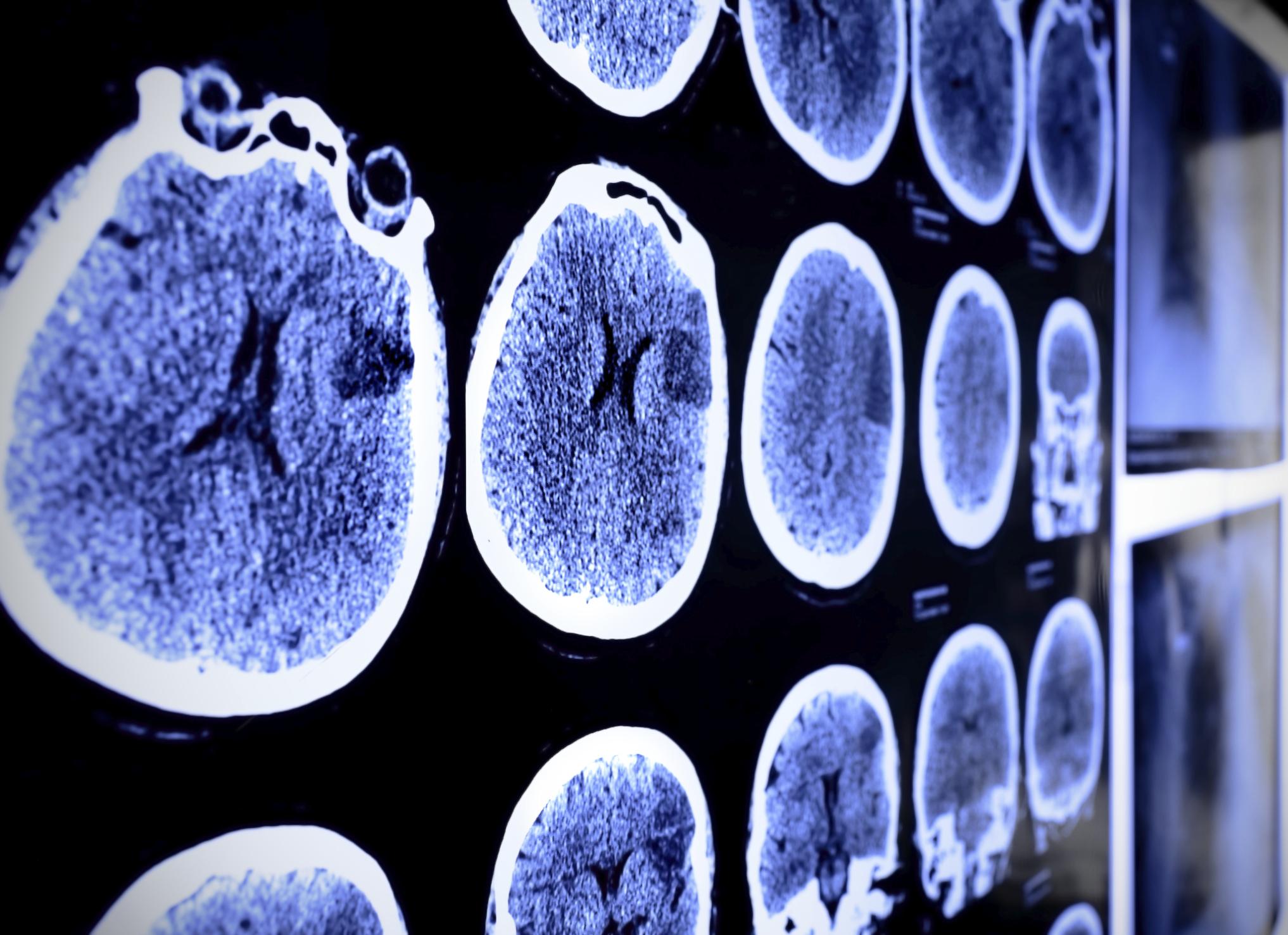 Study: Brain health linked to ability to keep balance