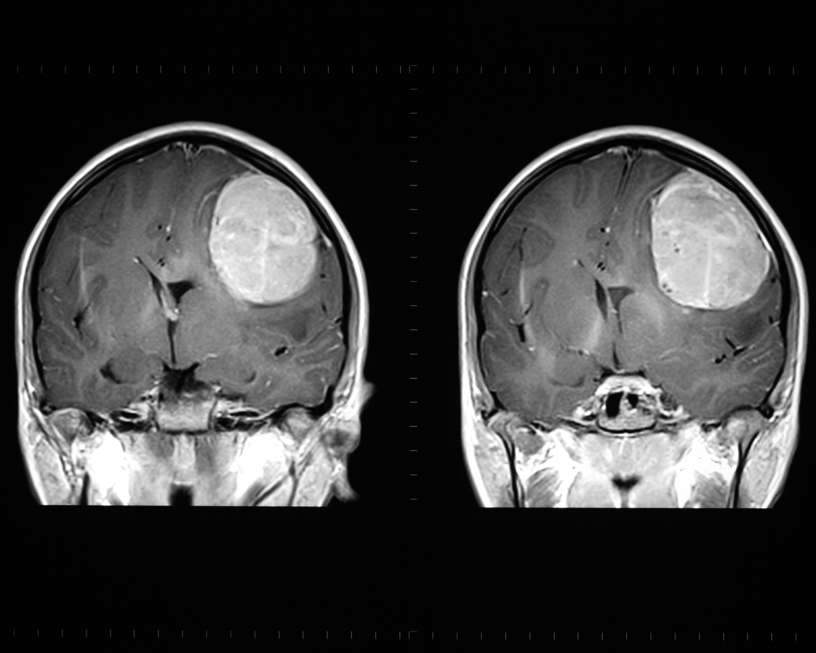 What symptoms are typically associated with brain cancer?