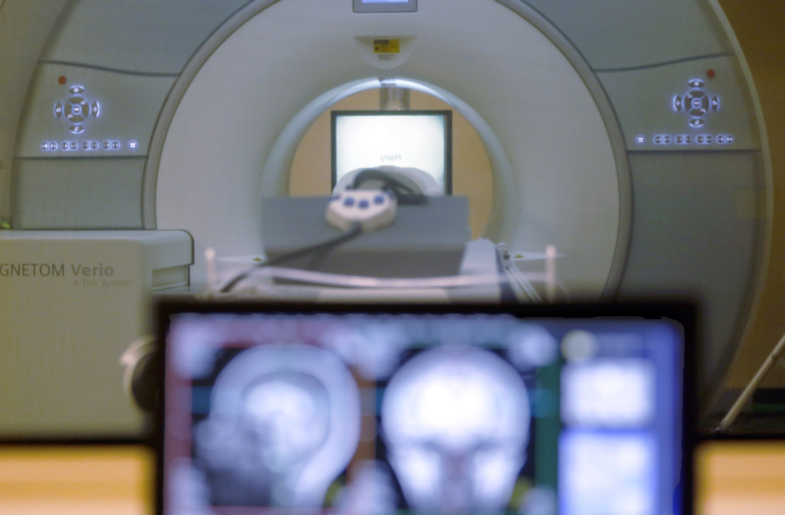 Local docs apply Henry Ford-like efficiency to stroke treatment