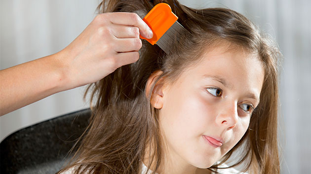 Drug-Resistant Lice Spreading Across the US