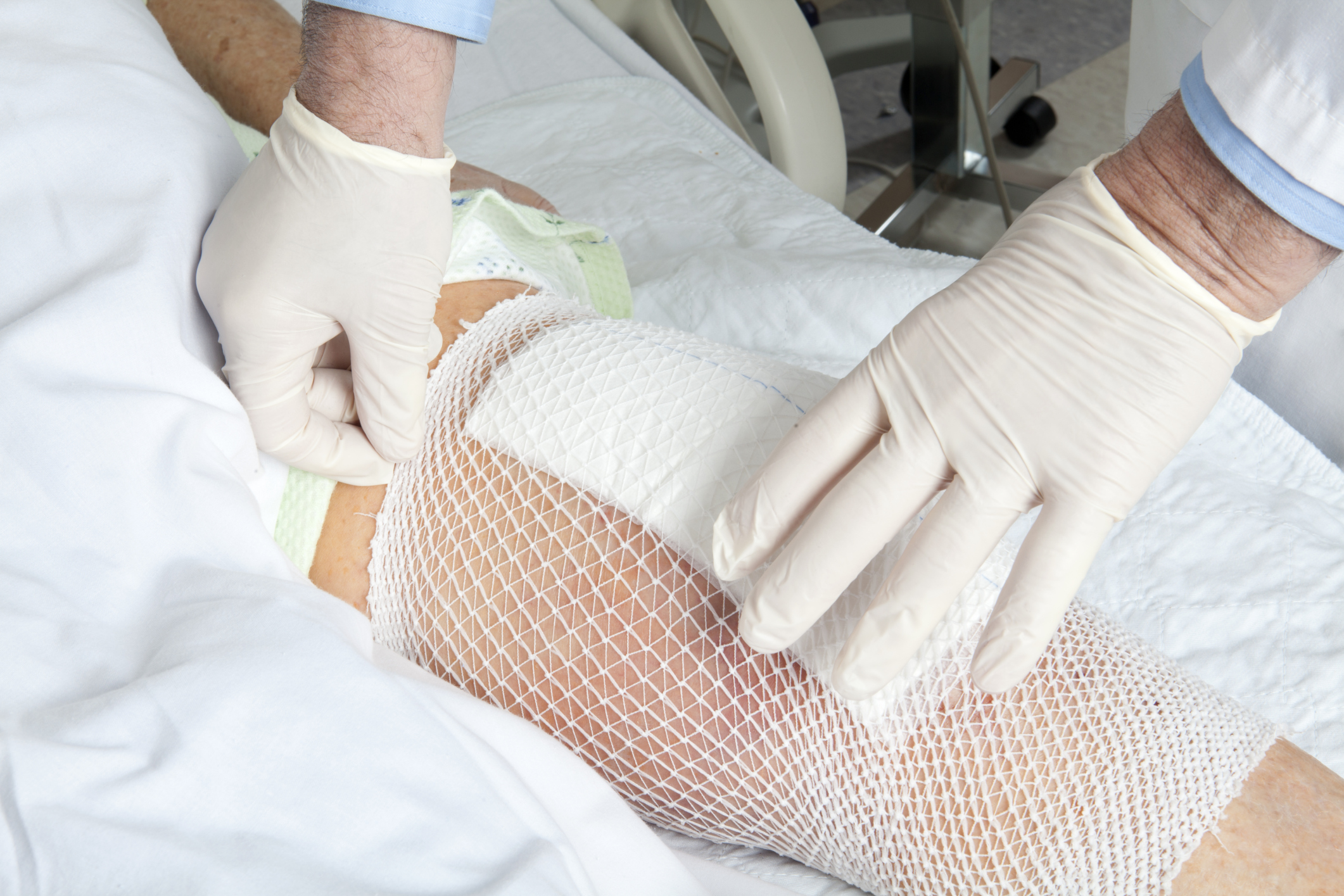 CDC: Knee replacement surgeries on the rise
