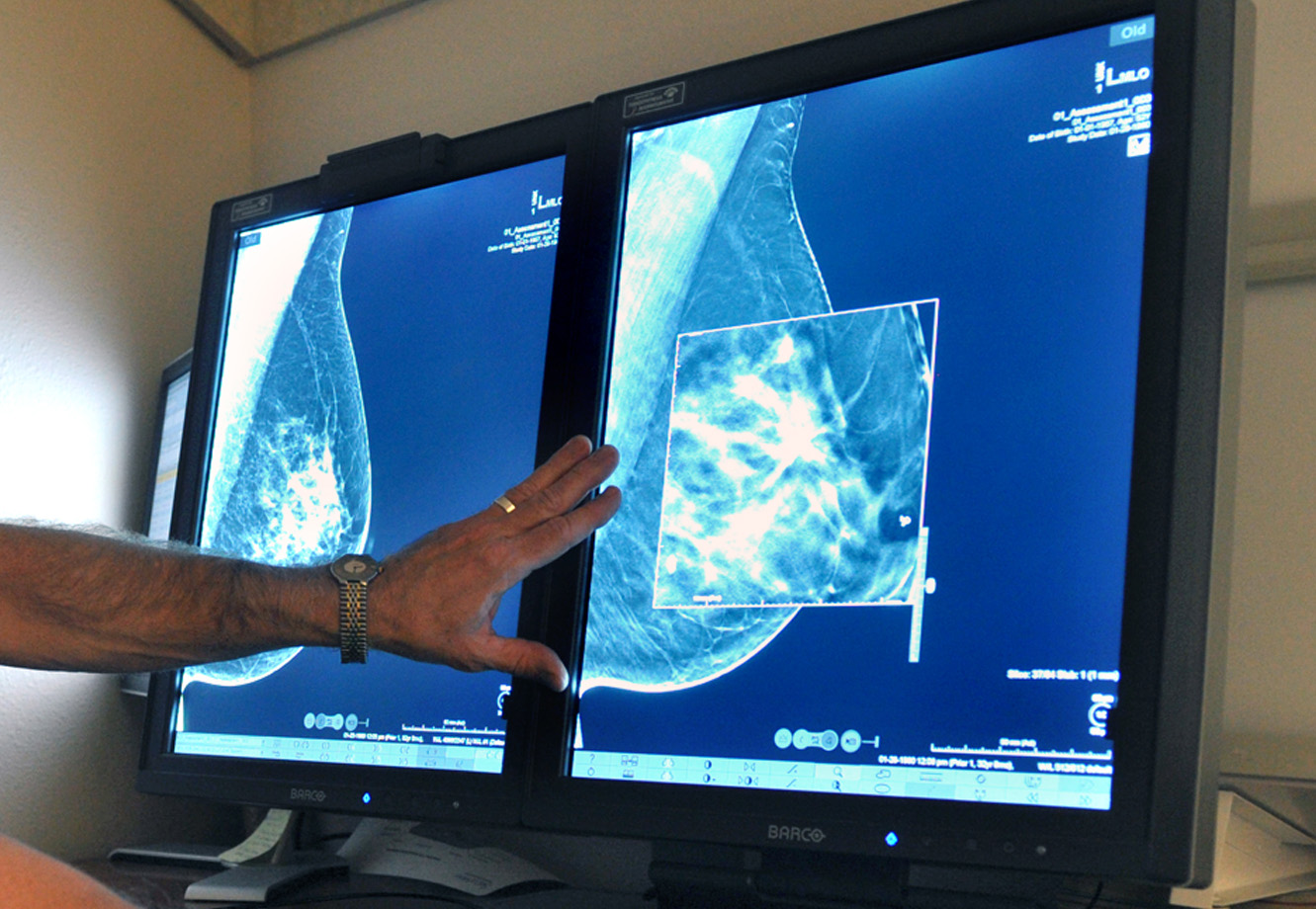 New technology aims to ease mammography fears