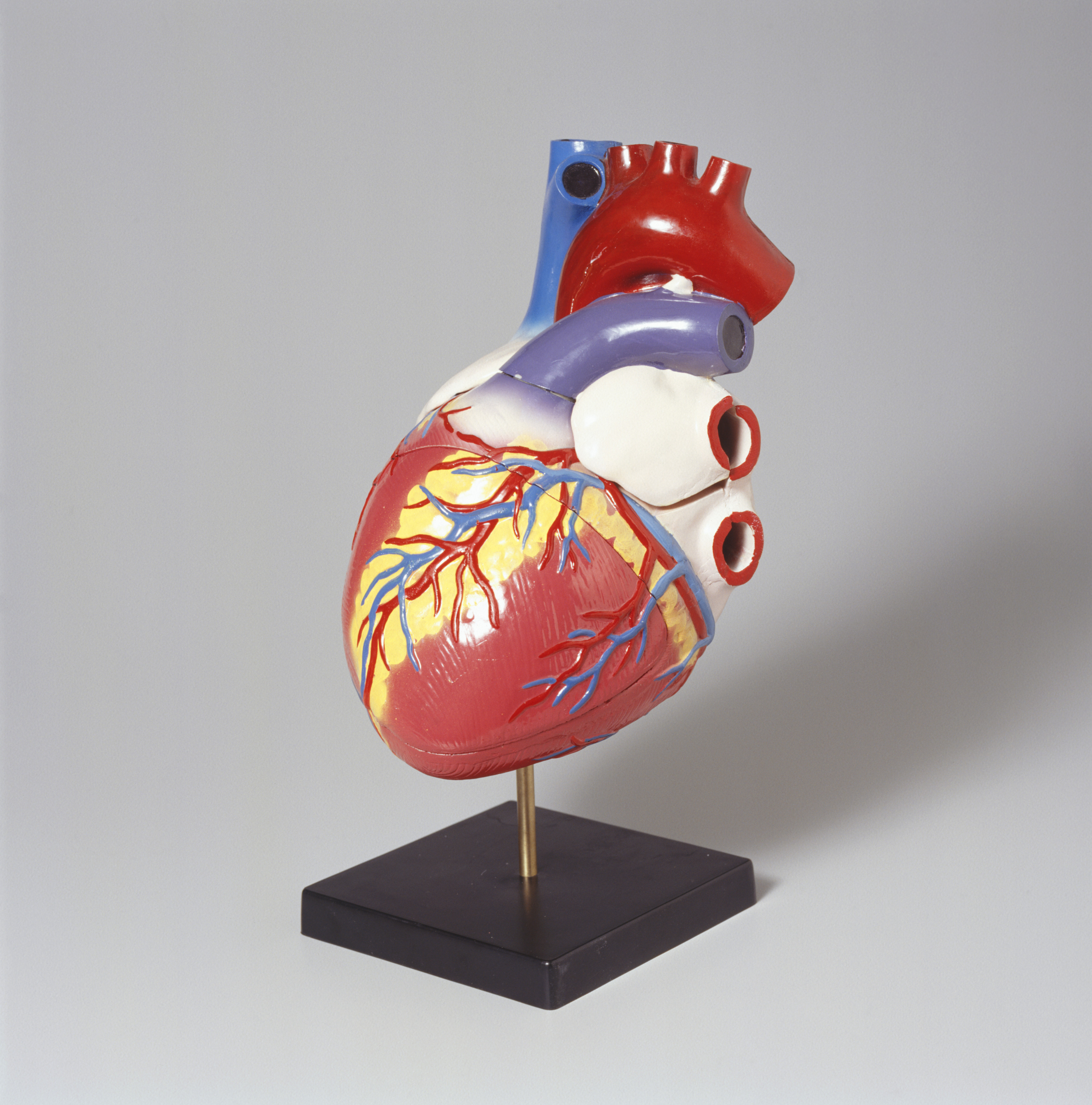 TAVR: Treating aortic stenosis without open heart surgery