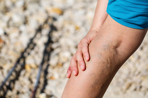 Know your options for treating varicose veins