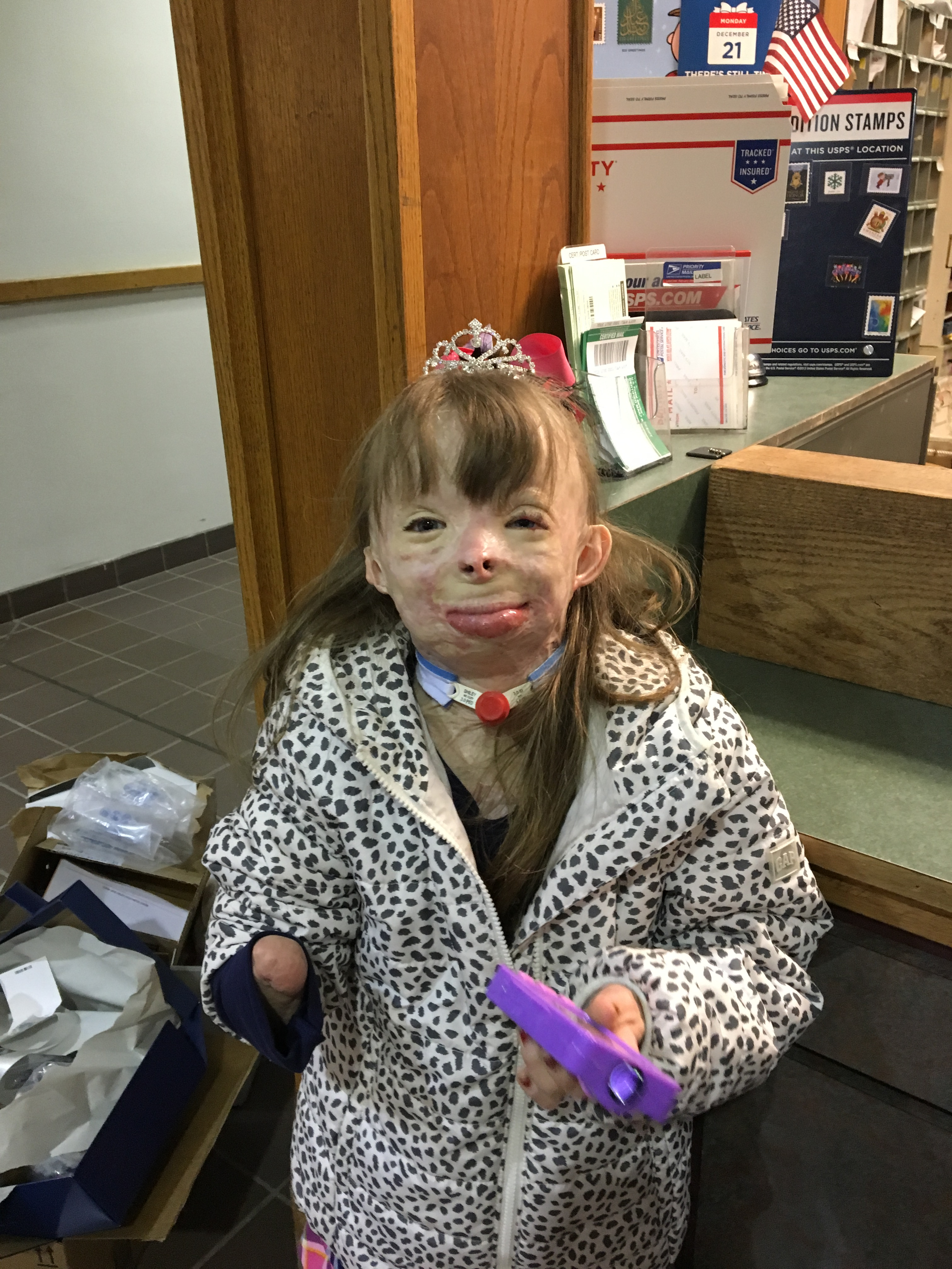 Christmas comes early to 8-year-old disfigured by fire | WTOP