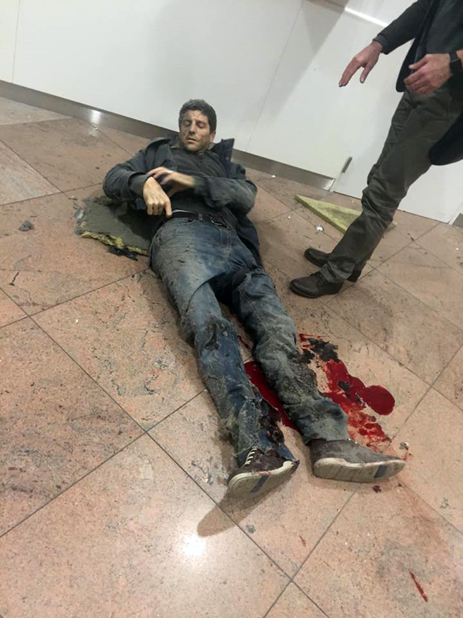 In this photo provided by Georgian Public Broadcaster and photographed by Ketevan Kardava a man is wounded in Brussels Airport in Brussels, Belgium, after explosions were heard Tuesday, March 22, 2016. A developing situation left at least one person and possibly more dead in explosions that ripped through the departure hall at Brussels airport Tuesday, police said. All flights were canceled, arriving planes were being diverted and Belgium's terror alert level was raised to maximum, officials said. (Ketevan Kardava/ Georgian Public Broadcaster via AP)