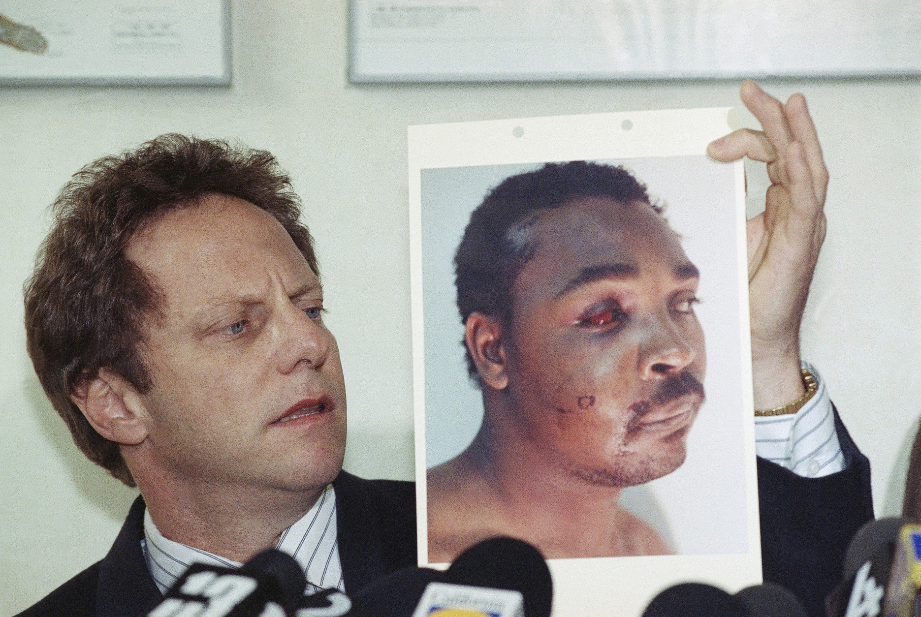 **WARNING: Graphic Content** Steven Lerman, attorney for Rodney King, displays a photo of his client during a press conference at his office in Beverly Hills, California, Friday, March 8, 1991. King's doctor outlined the extent of man's injuries for reporters during the meeting. (AP Photo/Nick Ut)