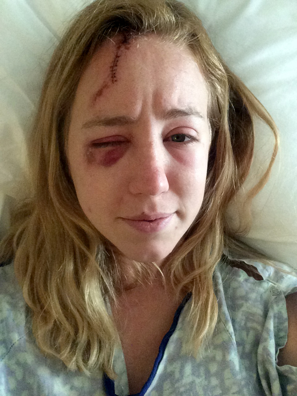 Md. woman who survived lightning strike feels lucky to be alive