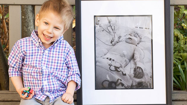 Kids' before and after photos highlight importance of organ donation