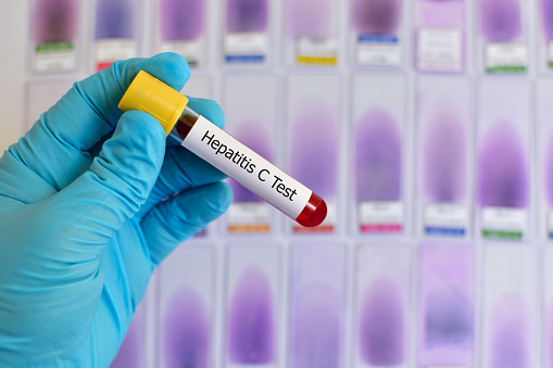 New Recommendations for Hepatitis C Testing