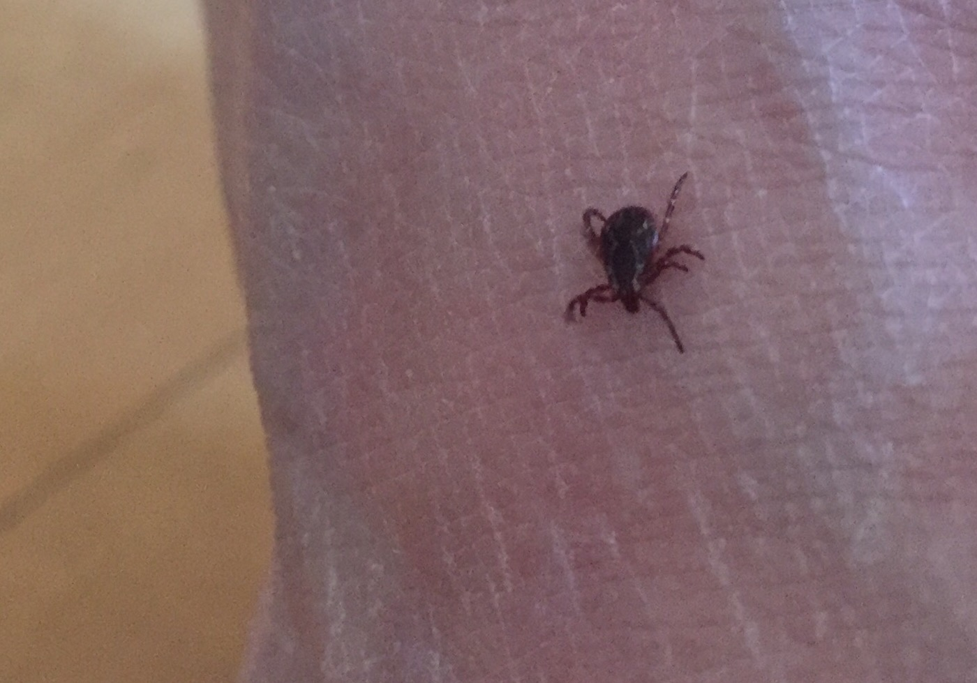 New 6-minute plan to remove ticks from clothes