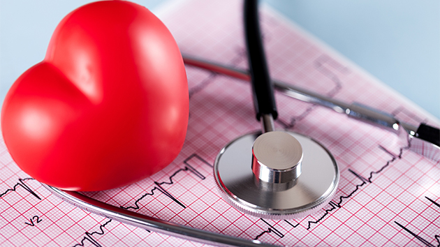 Death risk increased with a heart attack before the age of 50