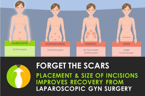 Cosmetically Placed Laparoscopic Incisions Help Women Recover from GYN Surgery Faster