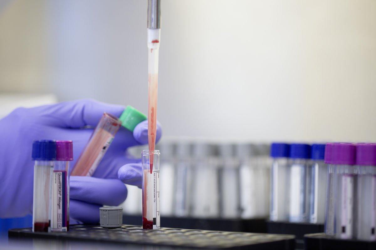 In this image released on Thursday, Feb. 16, 2017, a QuantiFERON-TB blood test. (QIAGEN N.V. via AP Images)