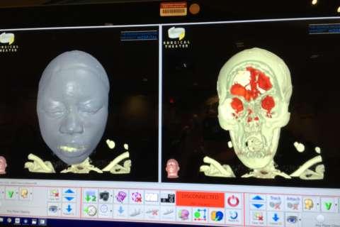 GW Hospital tool provides unique 3D view inside patients' bodies