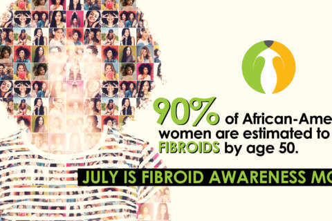 Fibroids Affect African-American Women More Severely
