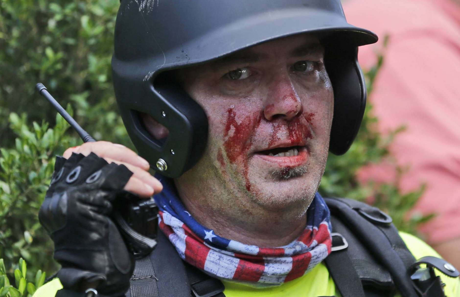 A white nationalist demonstrator, bloodied after a clash with a counter demonstrator,  talks on the radio receiver at the entrance to Lee Park in Charlottesville, Va., Saturday, Aug. 12, 2017. Gov. Terry McAuliffe declared a state of emergency and police dressed in riot gear ordered people to disperse after chaotic violent clashes between white nationalists and counter protestors. (AP Photo/Steve Helber)