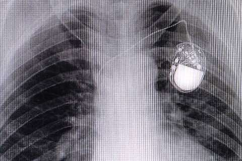 FDA recalls more than 400K pacemakers due to hacking concerns