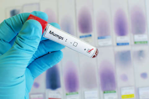 Health experts: Mumps vaccine weakens over time