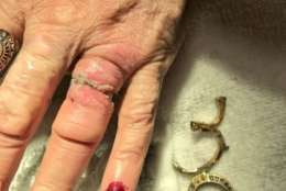 Arlington Fire helped a woman remove a ring from her finger Monday morning. (Courtesy Arlington Fire Department)