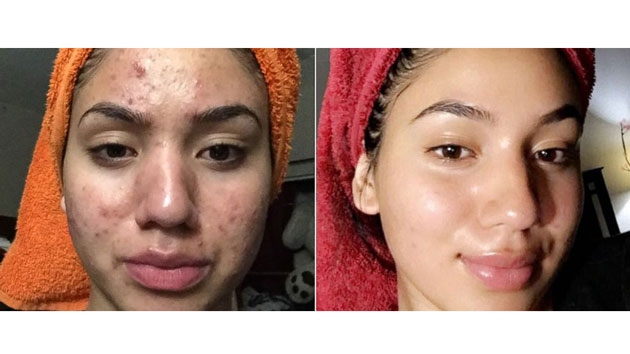 How to cure bad acne fast