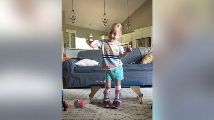 'I'm walking!' Four-year-old girl with cerebral palsy takes first steps