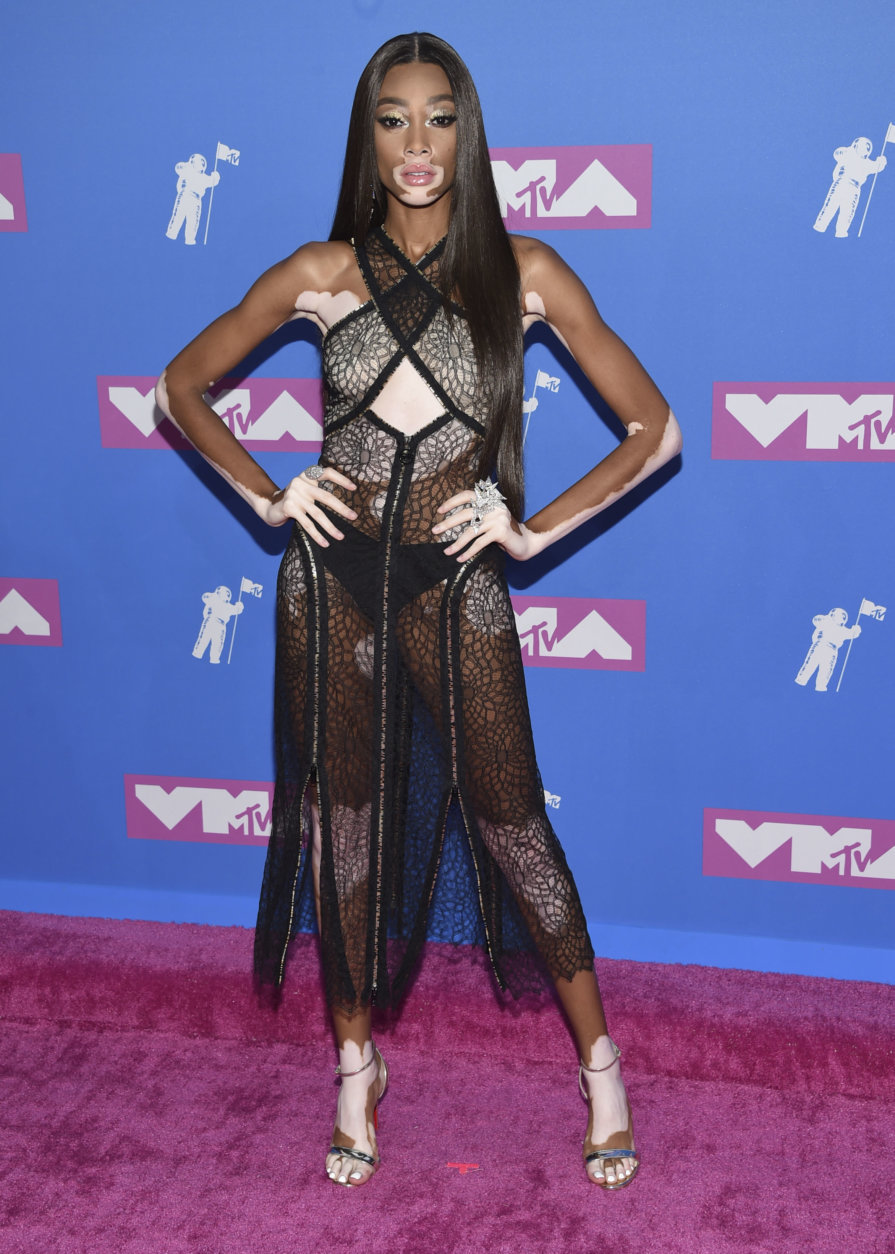 Winnie Harlow arrives at the MTV Video Music Awards at Radio City Music Hall on Monday, Aug. 20, 2018, in New York. (Photo by Evan Agostini/Invision/AP)