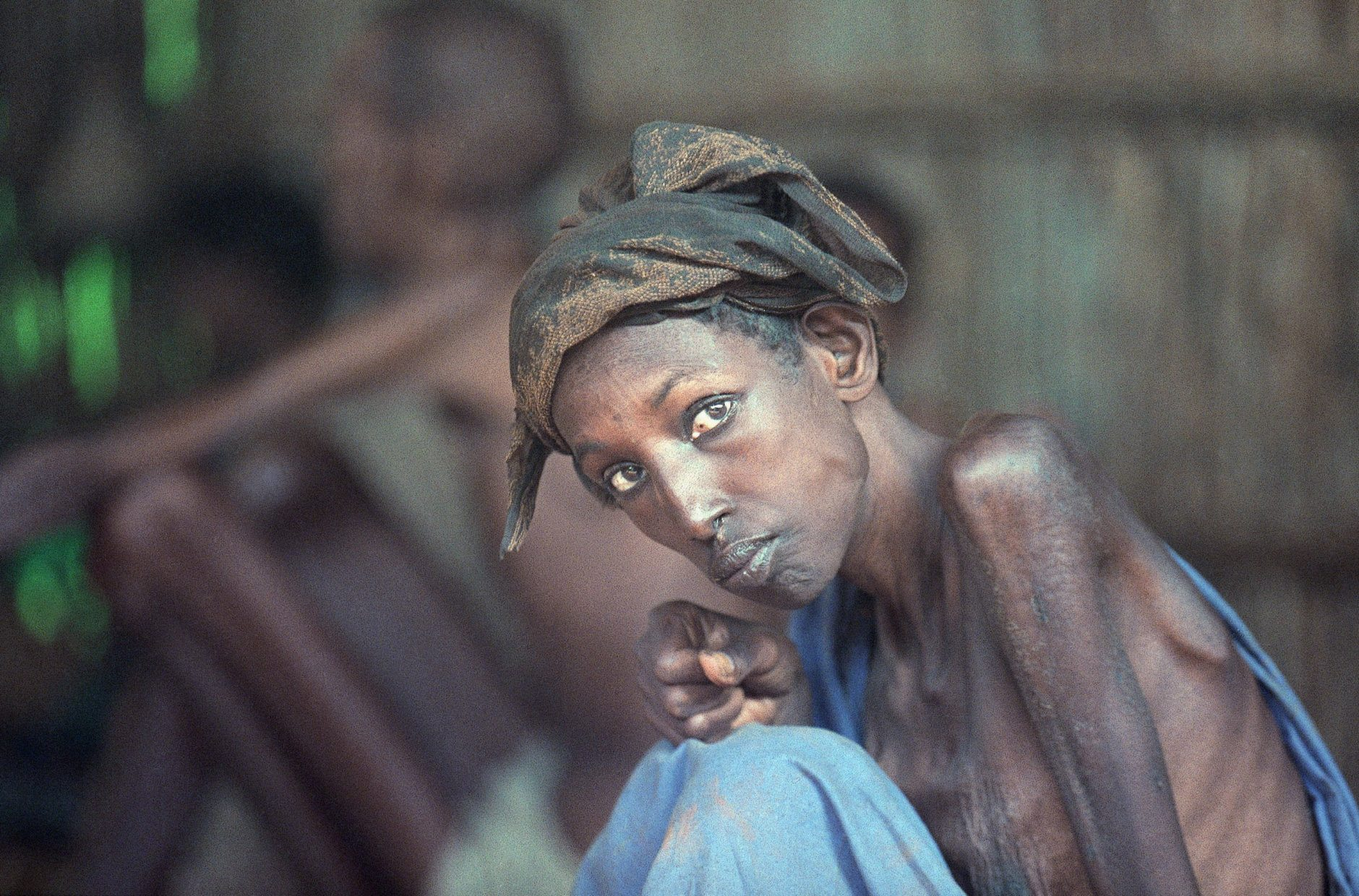 Middow Ibram Daayoue, 40, sits in an Irish Concern feeding center dedicated to adults, Tuesday, Dec. 16, 1992 in Baidoa. The adult sector of Somalia's population in struggling quietly to survive as most of the attention is focused on Somalia's starving young. (AP Photo/Jerome Delay)