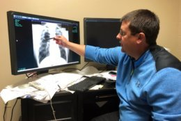 Dr. Brandon Crum points to the X-ray of a black lung patient at his office in Pikeville, Ky., on Thursday, Jan. 24, 2019. Crum has seen a wave of younger miners with black lung disease at his clinic since 2015. (AP Photo/Dylan Lovan)