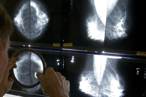 Advanced technologies help early breast cancer detection
