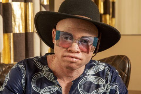 With albinism, musician Lazarus finds light in the darkness