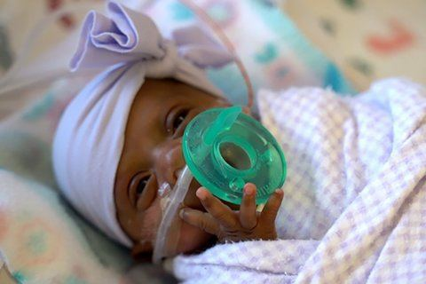 She was the world's smallest baby. Now she's a healthy infant