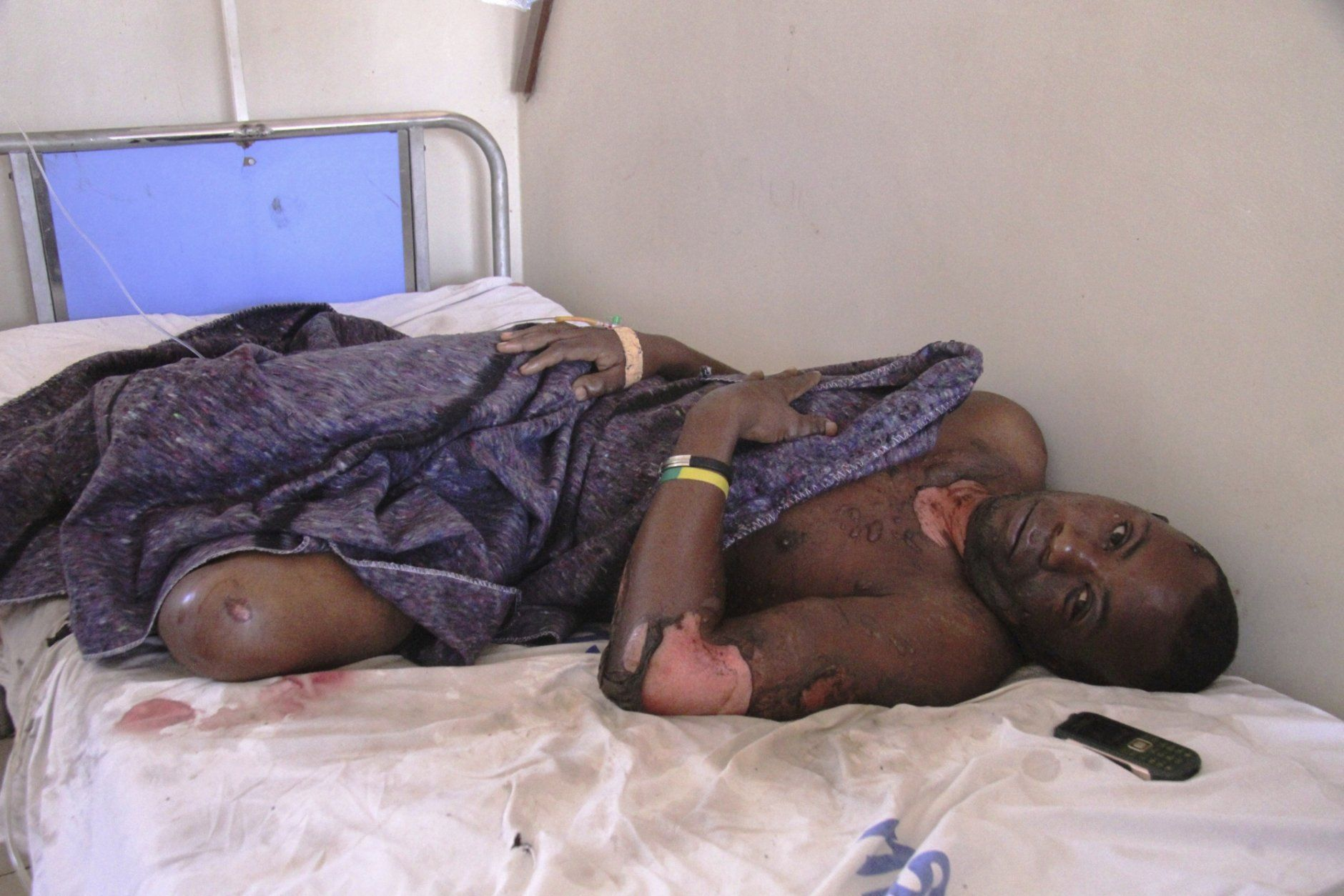 An injured person in hospital after a patrol tanker exploded, Saturday, Aug. 10 2019, in Morogoro, Tanzania.  A damaged tanker truck exploded in eastern Tanzania Saturday as people were trying to siphon fuel out of it, killing at least 62, in one of the worst incidents of its kind in the East African country. (AP Photo)