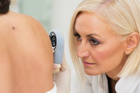 Skin cancer: Know the warning signs