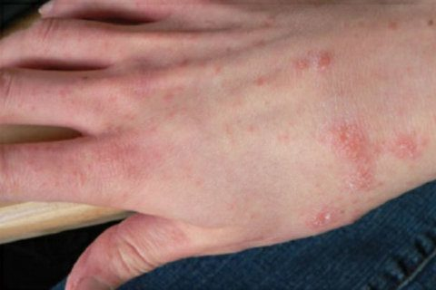 Scabies infestation reported at Prince George's County firehouses