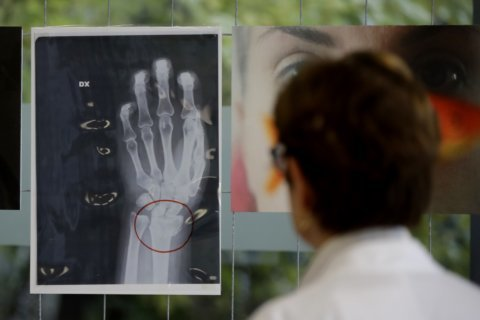 Milan hospital displays X-rays of women attacked by men