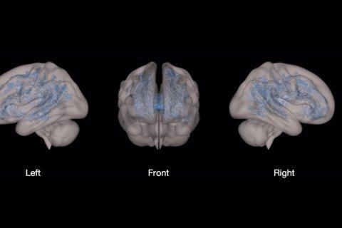 MRIs show screen time linked to lower brain development in preschoolers