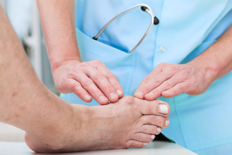 Bunions: What they are and how they're treated