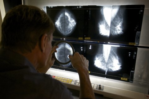 Breast cancer risk from menopause hormones may last decades