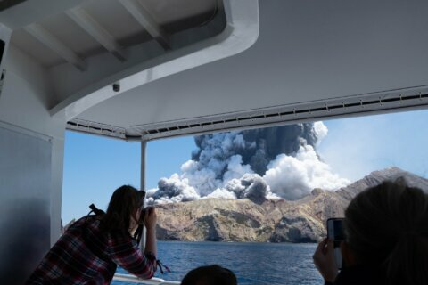 American newlyweds are 'progressing' from volcano burns
