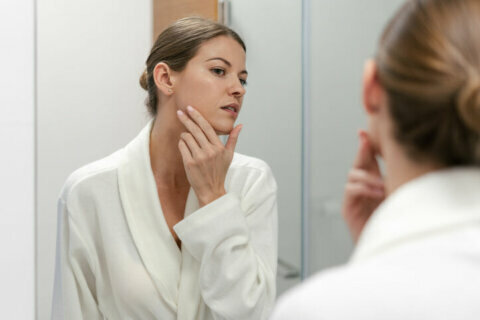 Pimples no more: What you can do to treat adult acne