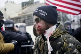 A protester is shown injured during a confrontation with police during a rally Wednesday, Jan. 6, 2021, at the Capitol in Washington. As Congress prepares to affirm President-elect Joe Biden's victory, thousands of people have gathered to show their support for President Donald Trump and his claims of election fraud. (AP Photo/Julio Cortez)