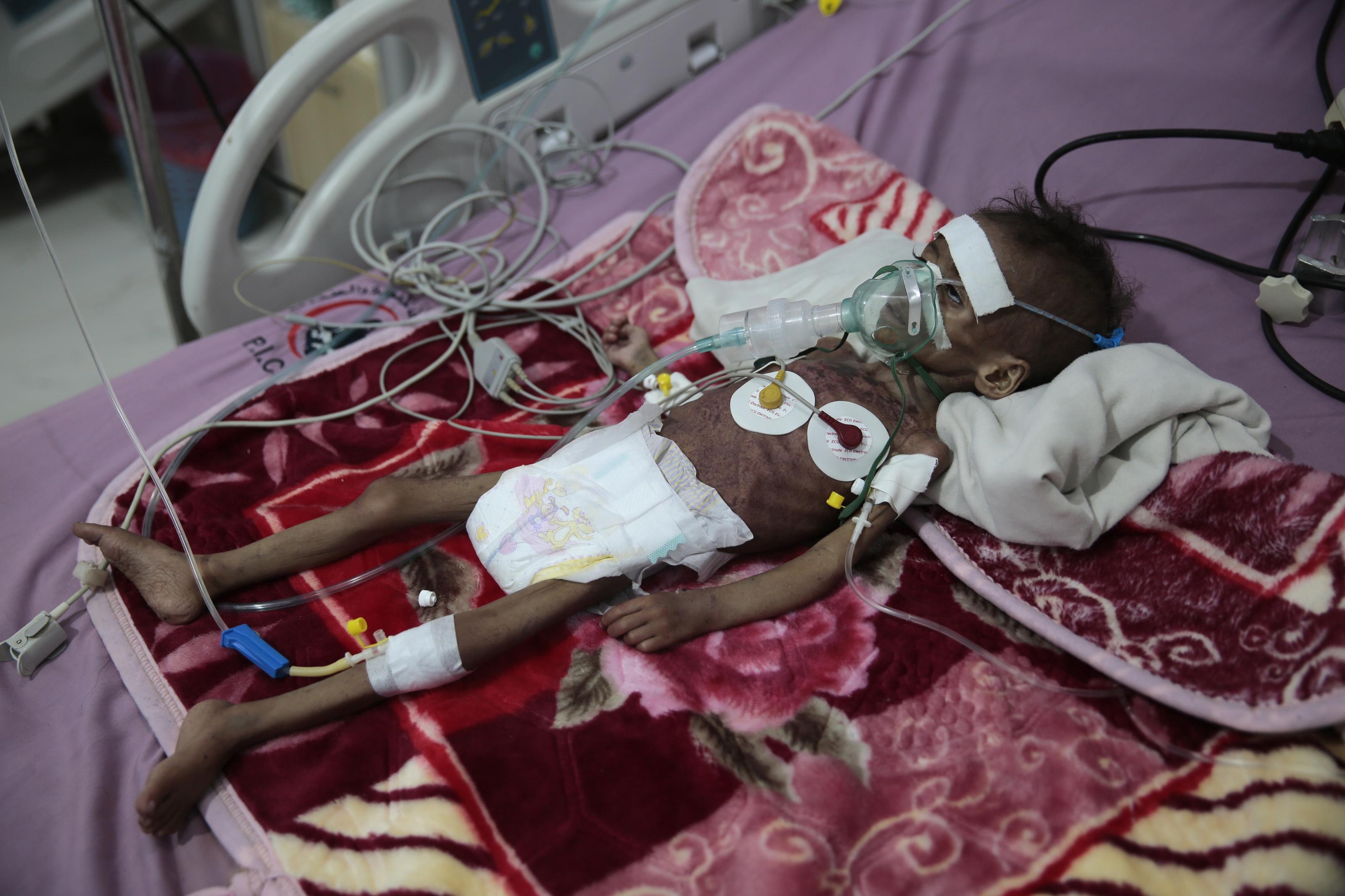 UN: 16 million Yemenis are `marching towards starvation.'